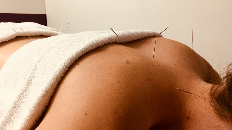 10 things you should know about acupuncture