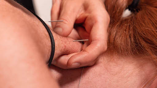 Dry needling versus acupuncture